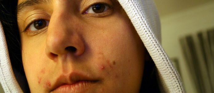 L'acne: una patologia benigna della pelle. Tipologie e terapia. L'aiuto delle erbe medicinali.